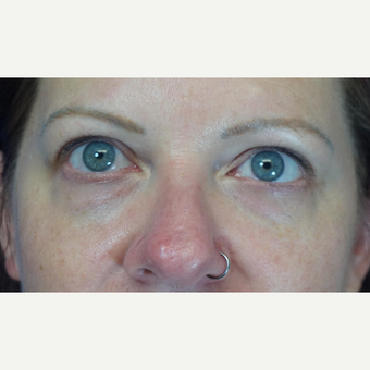 35-44 year old woman treated with Eyelid Surgery before 3376051
