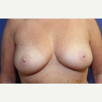 50 year old woman with a bilateral breast reconstruction using a tram flap before 3589112