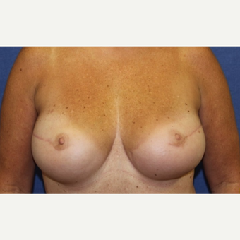 50 year old woman with a bilateral breast reconstruction using a tram flap after 3589112