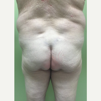 45-54 year old woman treated with Fat Transfer before 3400818