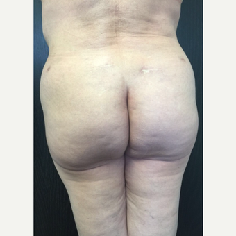 45-54 year old woman treated with Fat Transfer after 3400818