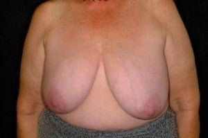 Breast Reconstruction before 1411257