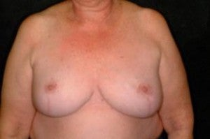 Breast Reconstruction after 1411257