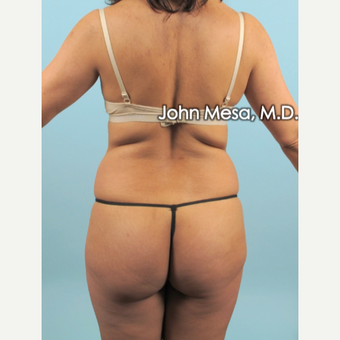 35-44 year old woman treated with Liposuction of flanks, back and sacrum before 3659820