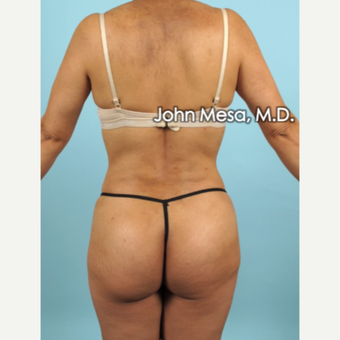 35-44 year old woman treated with Liposuction of flanks, back and sacrum after 3659820