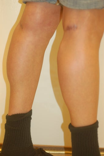 calf Implants after 905675