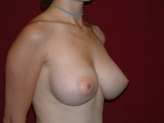 Breast Implants 683105