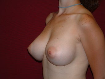 Breast Implants after 683105