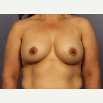 45-54 year old woman treated with Breast Augmentation after 3671527