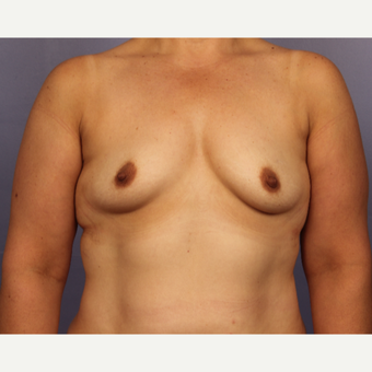 45-54 year old woman treated with Breast Augmentation before 3671527