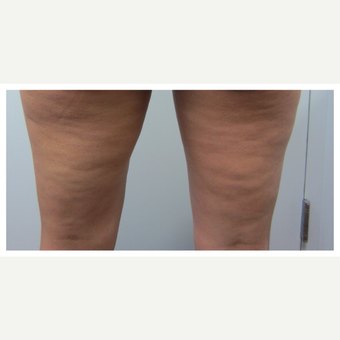 35-44 year old woman treated with Cellulaze before 2834127