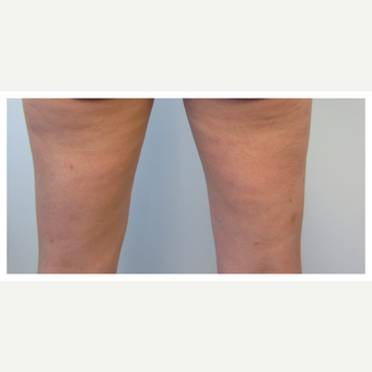 35-44 year old woman treated with Cellulaze after 2834127