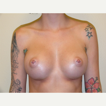 Breast Implants after 3806957