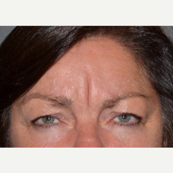 55-64 year old woman treated with Botox before 3520210
