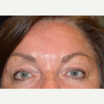 55-64 year old woman treated with Botox after 3520210