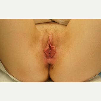 25-34 year old woman treated with Labiaplasty before 3486287