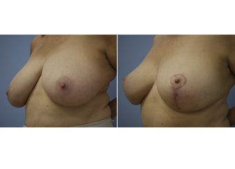 55 Year Old Female - Breast Reduction after 1229595