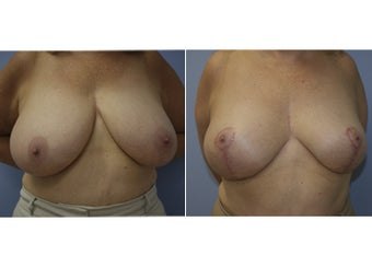 55 Year Old Female - Breast Reduction before 1229595