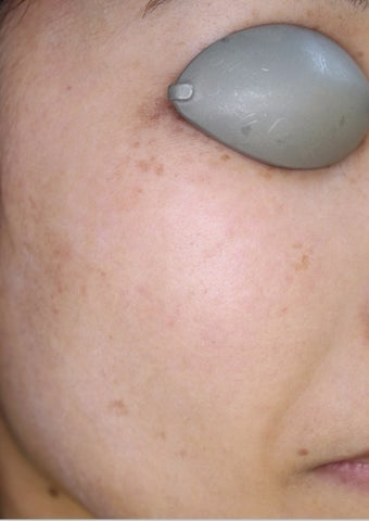 35-44 year old woman treated with IPL after 2699709