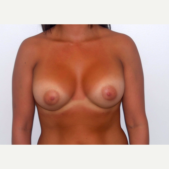 25-34 year old woman treated with Breast Augmentation after 3377988