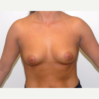 25-34 year old woman treated with Breast Augmentation before 3377988