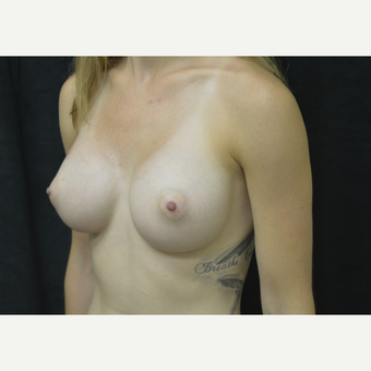 25-34 year old woman treated with Breast Augmentation after 3423961