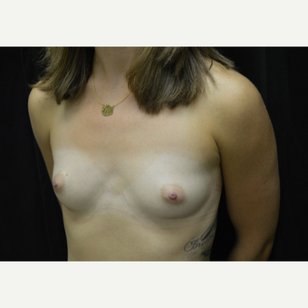 25-34 year old woman treated with Breast Augmentation before 3423961