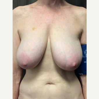65-74 year old woman treated with Breast Reduction before 2792646