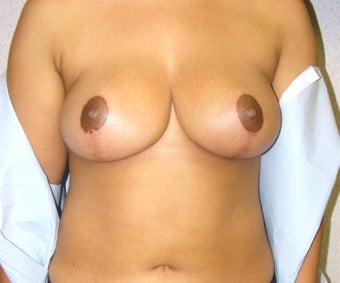 35 year old women with breast lift for asymmetry