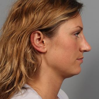 18-24 year old woman treated with Rhinoplasty after 3495179