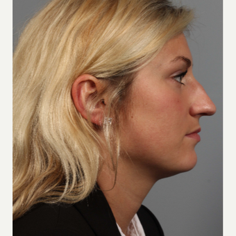 18-24 year old woman treated with Rhinoplasty before 3495179