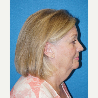 66 year old woman treated with Facelift before 3576629