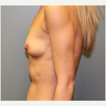 35-44 year old woman treated with Breast Augmentation before 3253864