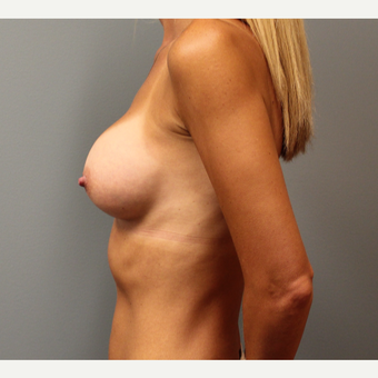 35-44 year old woman treated with Breast Augmentation after 3253864