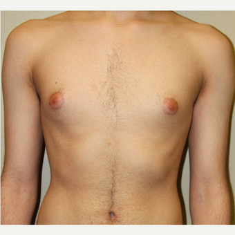 25-34 year old man treated with Male Breast Reduction before 3215383