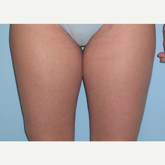 35-44 year old woman treated with Liposuction before 3076320