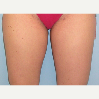 35-44 year old woman treated with Liposuction after 3076320