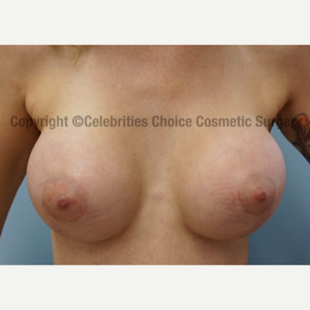 25-34 year old woman treated with Breast Implants after 3326179