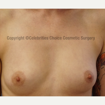 25-34 year old woman treated with Breast Implants before 3326179