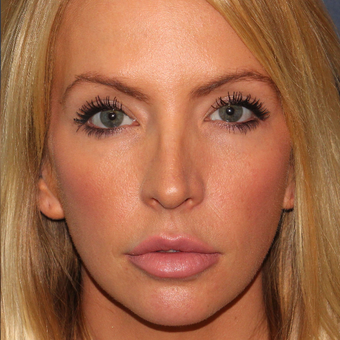 32 year old woman treated once with Botox for jaw/masseter reduction after 3617546