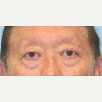 65-74 year old man treated with Eye Bags Treatment before 2438513