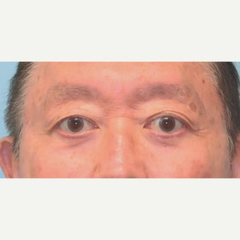65-74 year old man treated with Eye Bags Treatment after 2438513
