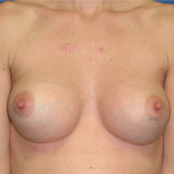 25-34 year old woman treated with Breast Augmentation after 3299961