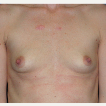 25-34 year old woman treated with Breast Augmentation before 3299961