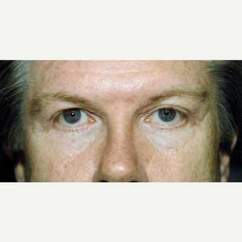 55-64 year old man treated with Eyelid Surgery after 3236386