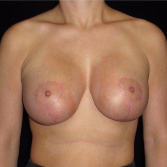 28 year old woman with asymmetry treated with Breast Augmentation after 3802639