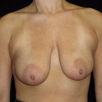 28 year old woman with asymmetry treated with Breast Augmentation before 3802639