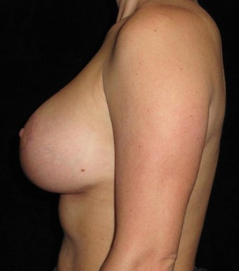 28 year old woman with asymmetry treated with Breast Augmentation 3802639