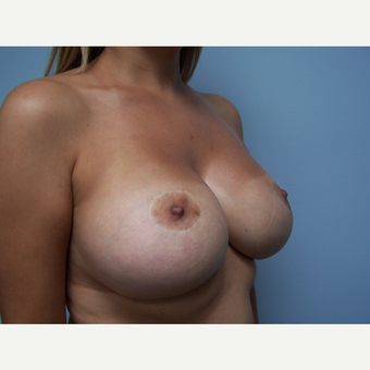 25-34 year old woman treated with Breast Implant Removal and Breast Lift before 3506888