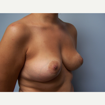 25-34 year old woman treated with Breast Implant Removal and Breast Lift after 3506888